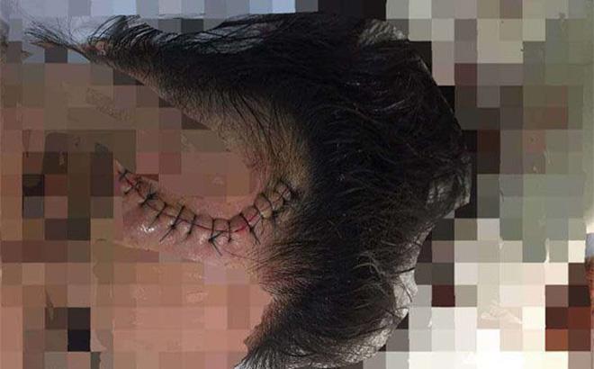Truy tìm ô tô Mazda CX5 đâm trọng thương cô gái rồi bỏ chạy 1