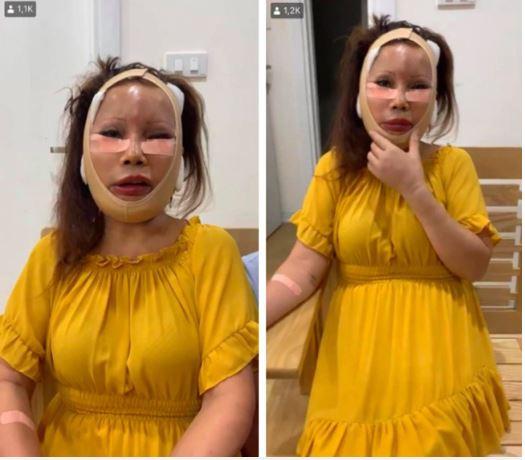 Cô dâu 62 tuổi ở Cao Bằng lộ khuôn mặt khiến ai cũng câm nín hậu phẫu thuật 1