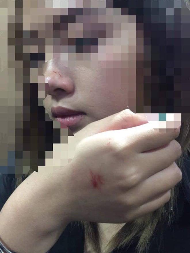 Kẻ biến thái cưỡng hôn nữ sinh trong thang máy chung cư đã trình diện công an 2