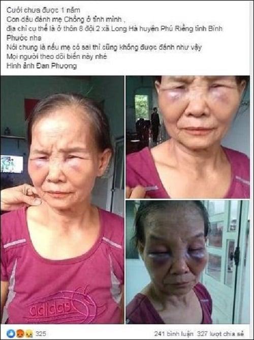 Xác minh thông tin con dâu ngược đãi mẹ chồng, đánh bầm tím mặt mày ở Nghệ An 2