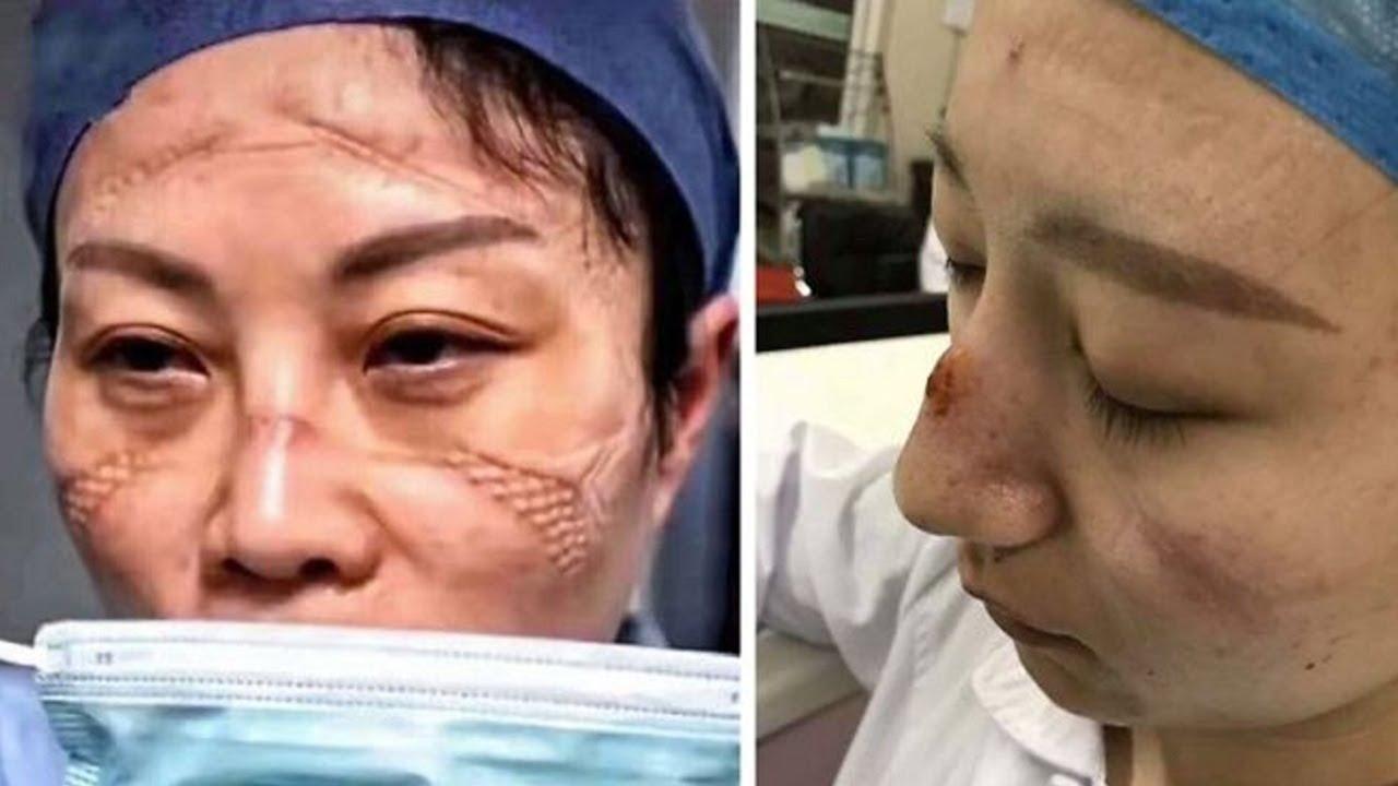 Kiệt quệ trên tuyến đầu chống dịch Corona, 2 y tá từ Vũ Hán cầu cứu đồng nghiệp 2