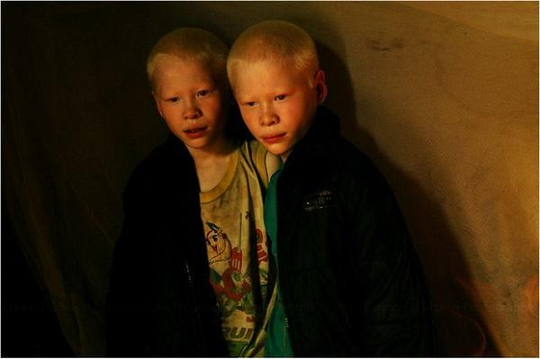 Cặp anh em sinh đôi bạch tạng đổi đời sau 7 năm nổi tiếng 3
