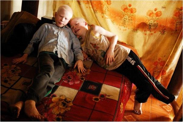 Cặp anh em sinh đôi bạch tạng đổi đời sau 7 năm nổi tiếng 2