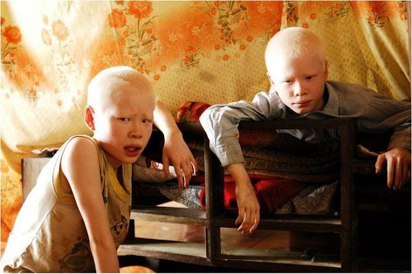 Cặp anh em sinh đôi bạch tạng đổi đời sau 7 năm nổi tiếng 1