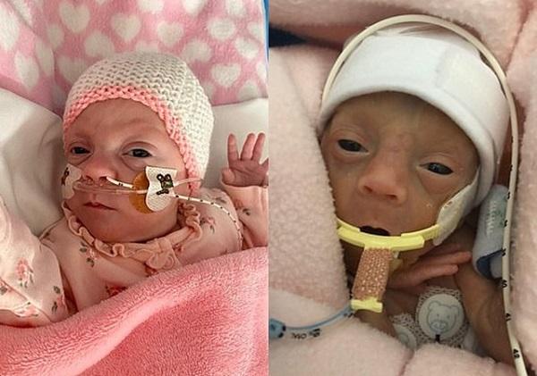 Em bé 9 lạng và hành trình giành giật sự sống phi thường trong túi nilon 3