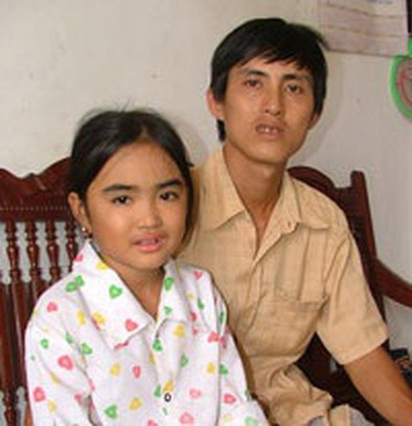 Cô gái được ghép gan đầu tiên tại Việt Nam qua đời ở tuổi 26 2