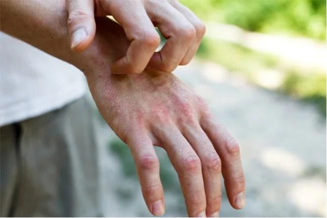 Bác sĩ liệt kê 5 triệu chứng phổ biến trên da của bệnh nhân nhiễm Covid-19 1