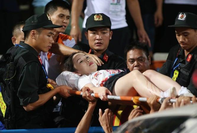 Khởi tố, bắt tạm giam đối tượng bắn pháo sáng khiến cổ động viên nữ bị thương 1