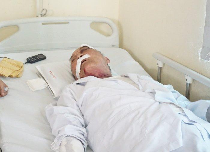 Tài xế xe ôm đánh ông cụ 80 tuổi chấn thương nặng chỉ vì khó chịu 2