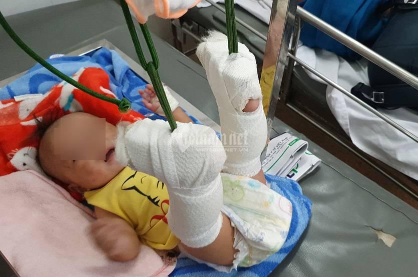 Lời khai đầy phẫn nộ của ông bố đánh bé 4 tháng tuổi gãy 2 chân, xuất huyết não 1