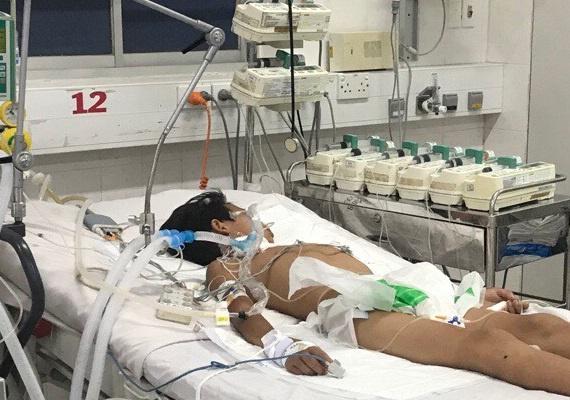 Bé trai 13 tuổi mắ bạch hầu ở Đắk Nông diễn biến nguy kịch, phải ghép tim 1