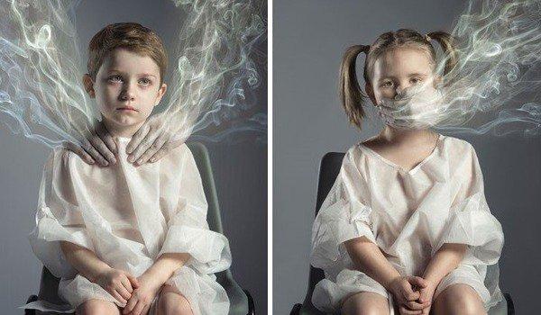 Bố hút vài chục điếu thuốc mỗi ngày: Con 5 tuổi nhập viện vì huyết áp cao, mạch máu xơ cứng 4