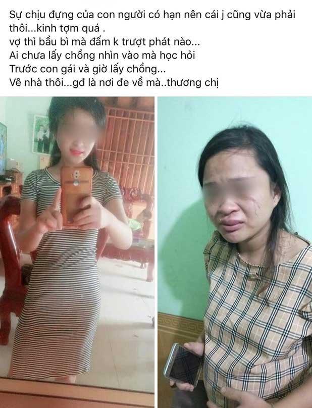 Mua giày online, thai phụ 8 tháng bị chồng đánh bầm người, đuổi về nhà đẻ 1