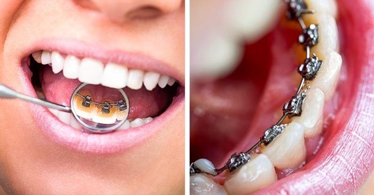 8 اشتباه در مراقبت از دندان که تقریبا همه 3 مرتکب می شوند