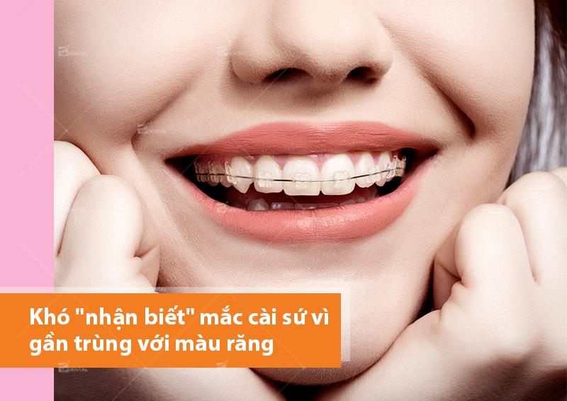 Niềng răng mắc cài sứ tự buộc và bí quyết 'cởi bỏ' hàm răng xấu xí 1