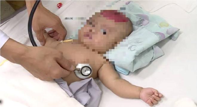 Hy hữu: Bé gái 2 tháng tuổi bị chấn thương sọ não vì bố làm rơi điện thoại trúng đầu. 1