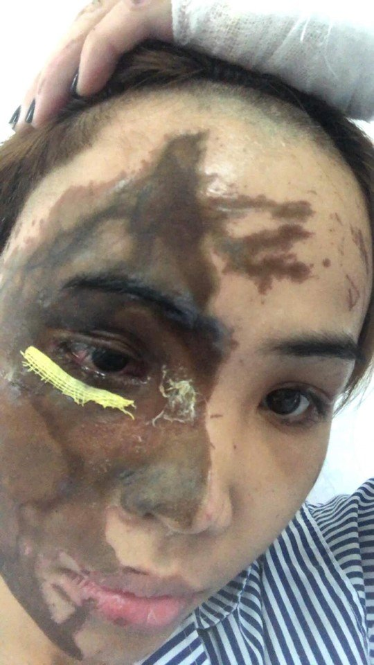 Cô gái bị chồng chưa cưới cuồng ghen tạt axit hủy hoại toàn bộ khuôn mặt 5